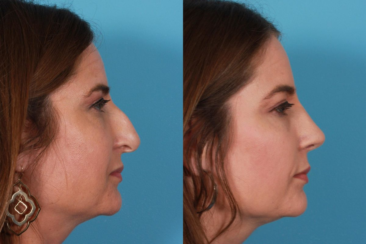 Rhinoplasty Before And After Rhinoplasty to ...